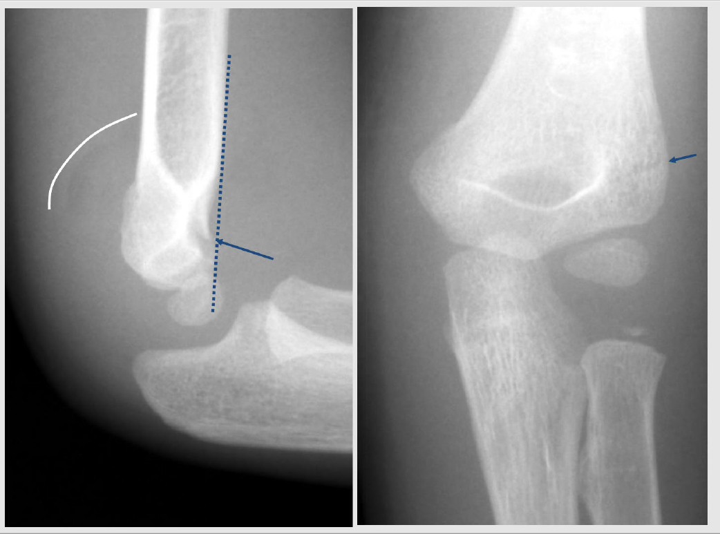 Examples Supracondylar Fracture Of The Elbow to avoid misreadings on x-rays